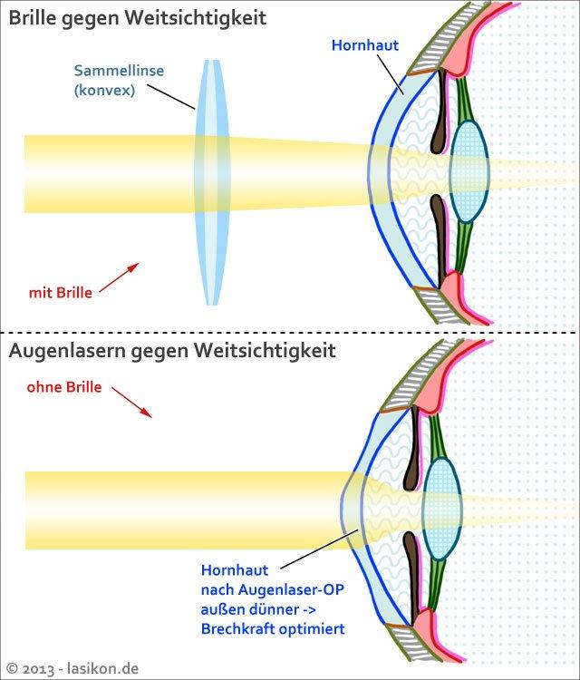 Altersweitsichtigkeit lasern lassen, Quelle: https://www.lasikon.de/augenlasern/lasik-altersweitsichtigkeit/
